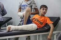 An injured Iraqi child at Hammam Al-Alil field hospital, south west of Mosul.
